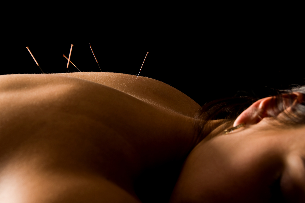 Holistic-Acupuncture-Integrative-Acupuncture-Los-Angeles-CA -Village Health Foundation.org